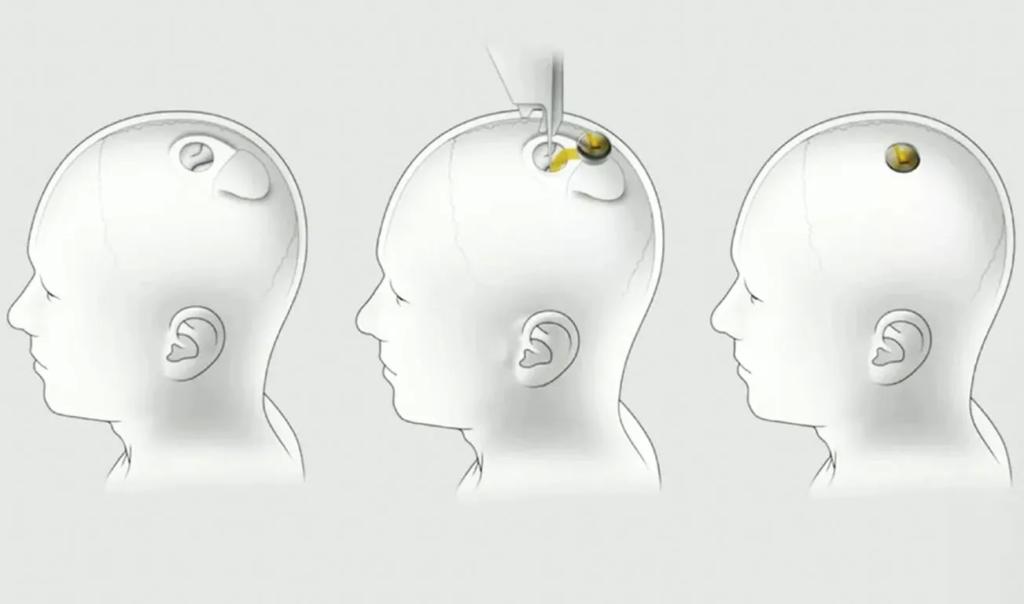 Neuralink de Elon Musk 2